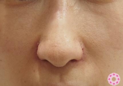 縮小 傷跡 小鼻